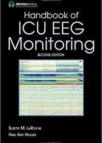 Handbook of ICU EEG Monitoring, 2e (Original Publisher PDF)