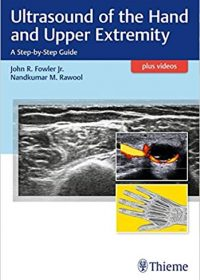Ultrasound of the Hand and Upper Extremity: A Step-by-Step Guide, 1e (Original Publisher PDF)