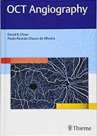OCT Angiography, 1e (Original Publisher PDF)