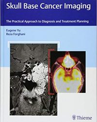 Skull Base Cancer Imaging: The Practical Approach to Diagnosis and Treatment Planning, 1e (Original Publisher PDF)