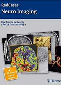 Radcases Neuro Imaging, 1e (Original Publisher PDF)