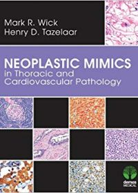 Neoplastic Mimics in Thoracic and Cardiovascular Pathology, 1e (Original Publisher PDF)