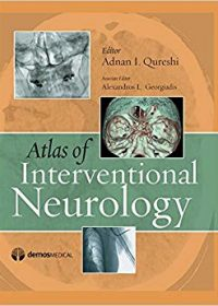 Atlas of Interventional Neurology, 1e (Original Publisher PDF)
