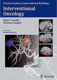 Interventional Oncology, 4e (Original Publisher PDF)