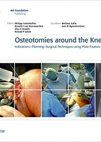 Osteotomies Around the Knee: Indications - Planning - Surgical techniques using Plate Fixators, 1e (Original Publisher PDF)