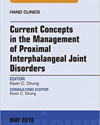 Current Concepts in the Management of Proximal Interphalangeal Joint Disorders, An Issue of Hand Clinics, 1e (Original Publisher PDF)