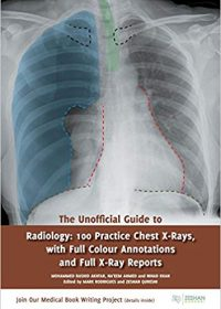 The Unofficial Guide to Radiology: 100 Practice Chest X Rays with Full Colour Annotations and Full X Ray Reports, 1e (Original Publisher PDF)