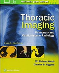 Thoracic Imaging: Pulmonary and Cardiovascular Radiology (EPUB)