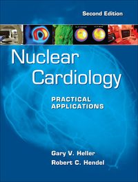 Nuclear Cardiology: Practical Applications, 2e (EPUB)