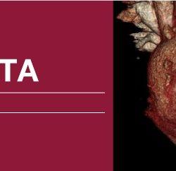 Classic Lectures in Cardiac CTA 2018 (Videos)