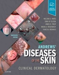 Andrews' Diseases of the Skin Clinical Dermatology, 13e (True PDF)