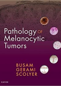 Pathology of Melanocytic Tumors, 1e (True PDF)